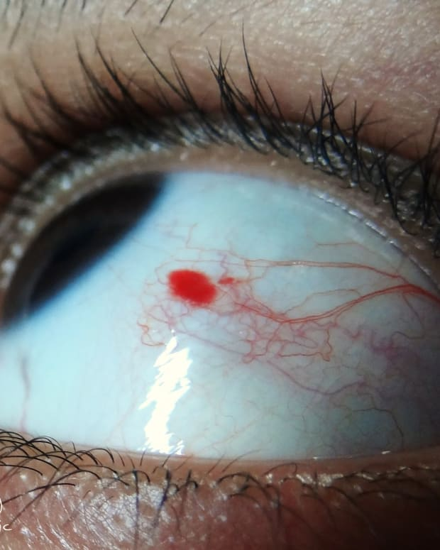 causes-of-a-red-spot-on-eye