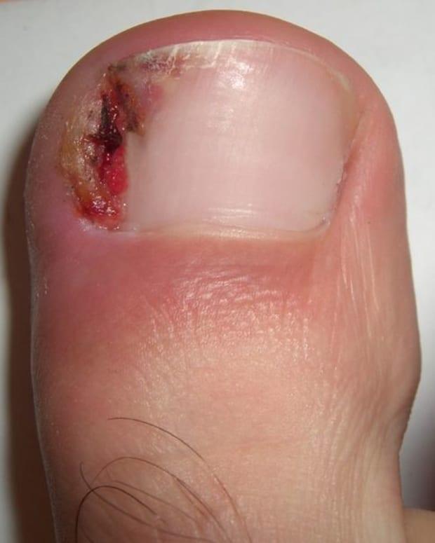 ingrown-toenail-home-treatment-remedies-and-relief-for-ingrown-toenails