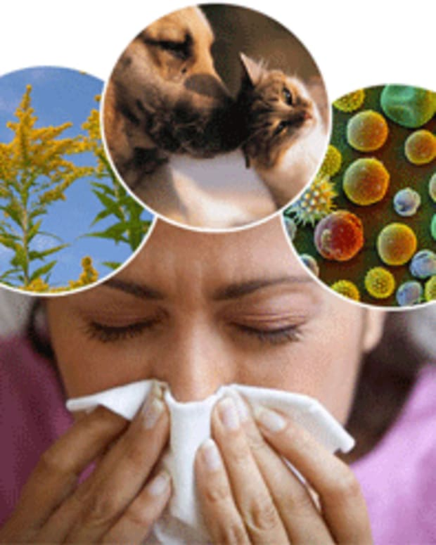 best-herbal-remedies-for-allergies