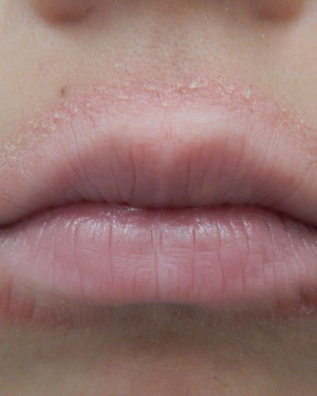 rash-around-mouth