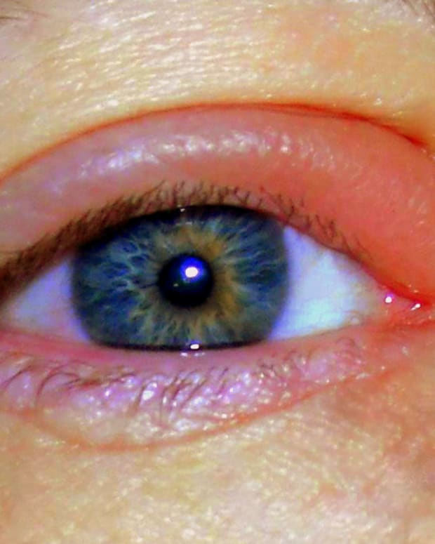 treating-an-eye-stye-at-home