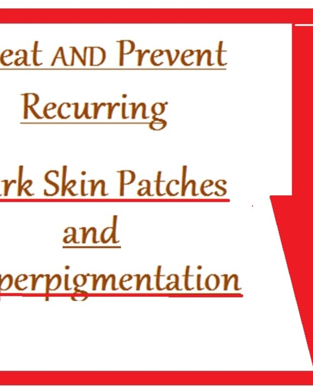 hyperpigmentation-treatmenst-and-prevention