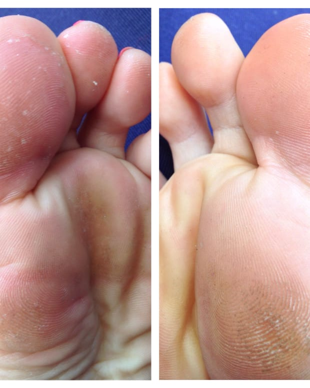 home-remedies-for-the-treatment-of-athletes-foot