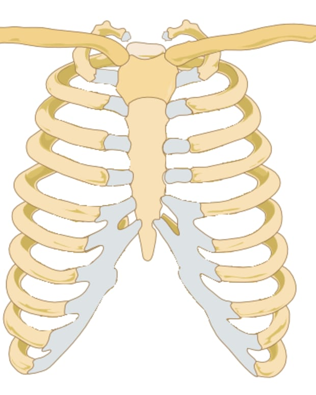 costochondritis-chest-pain-unassociated-with-your-heart
