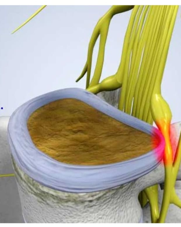 sciatica-causes-symptoms-and-treatment