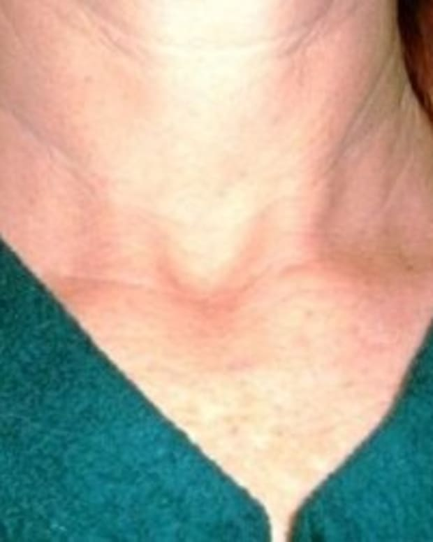 thyroid-cancer-information
