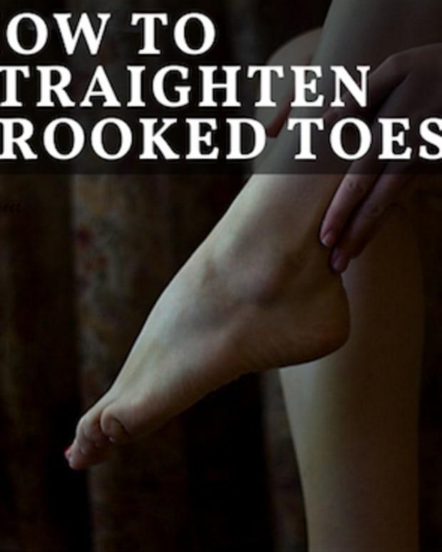 toe-straightener