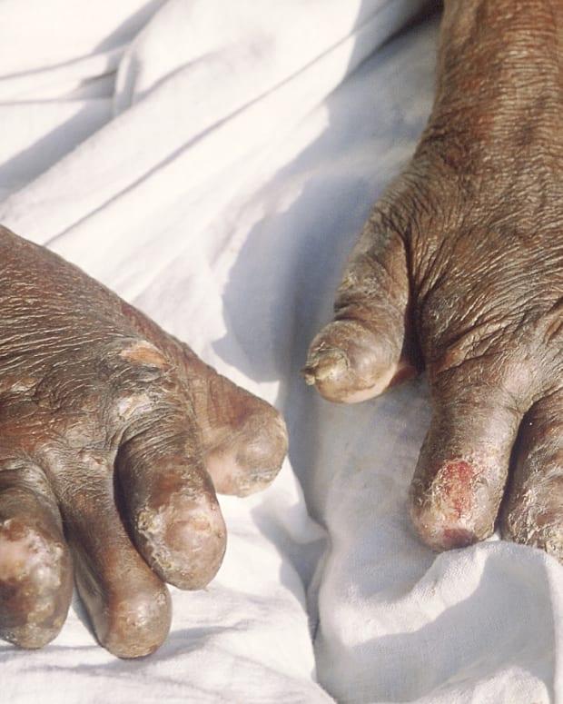 leprosy-bacteria-macrophages-and-nerve-damage