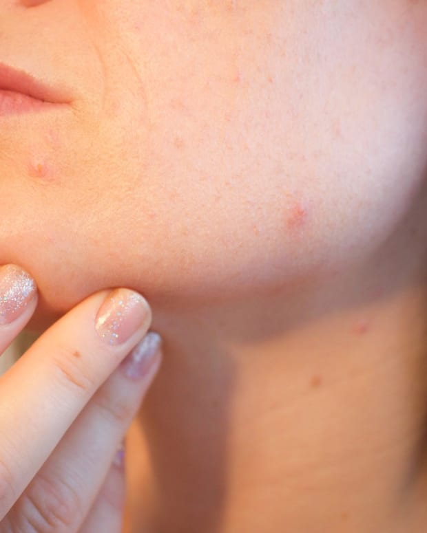 acne-causes-general-care-and-treatment
