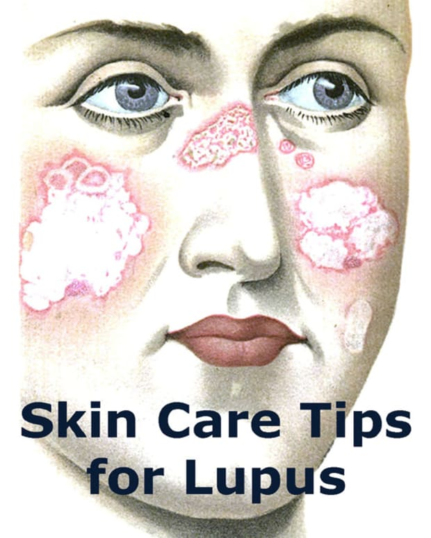 lupus-skin-care-tips