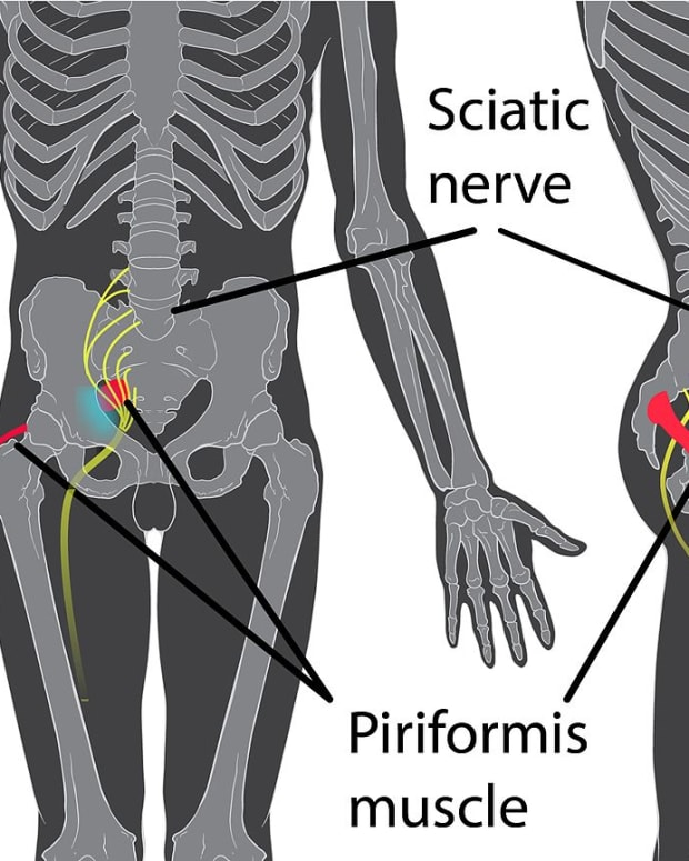 inner-thigh-pain
