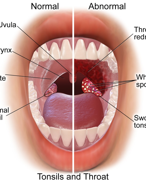 how-to-cure-tonsilitis