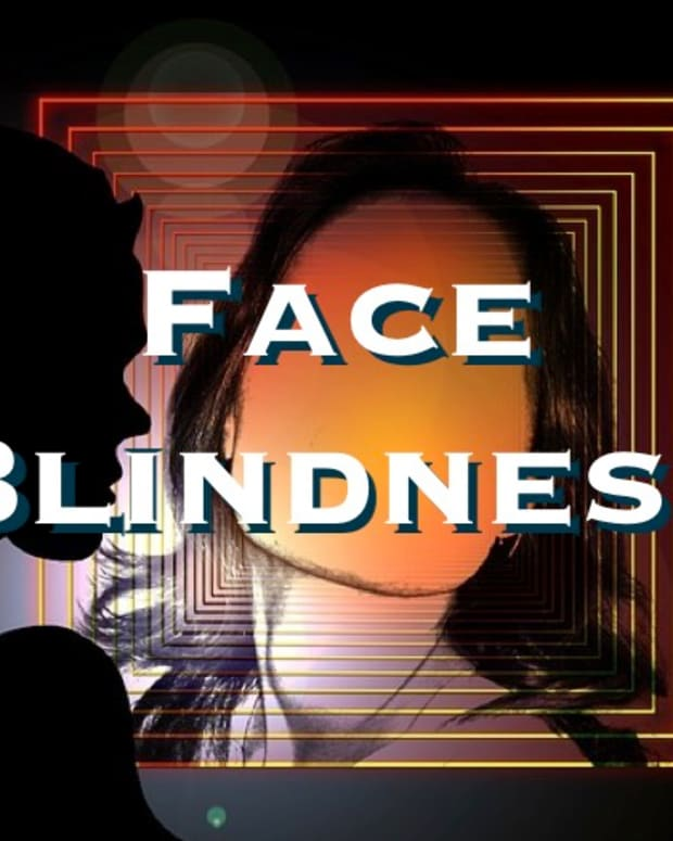 prosopagnosia-face-blindness