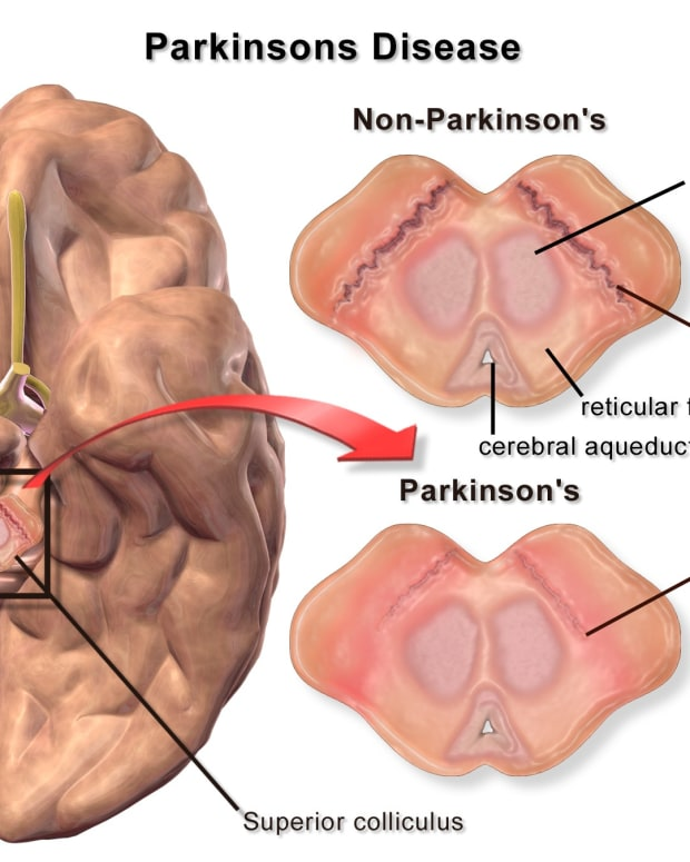 parkinsons-disease-biology-and-the-hope-of-stem-cell-treatment