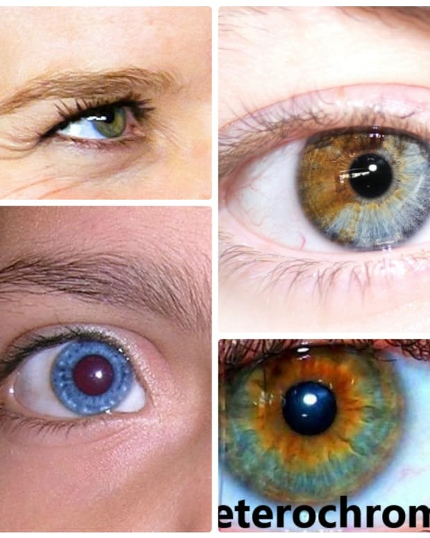 heterochromia-iridum-people-with-two-different-colored-eyes