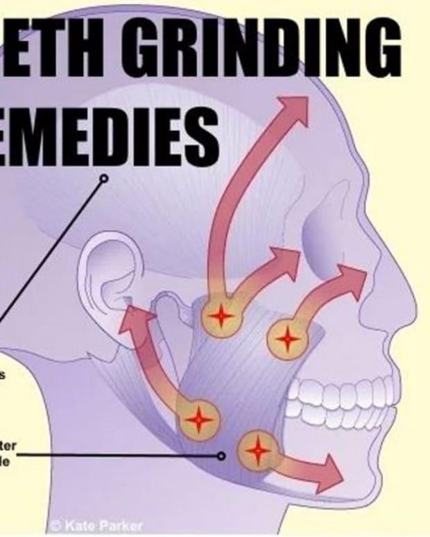 stop-grinding-your-teeth