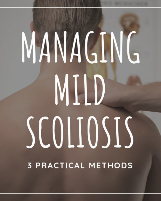 3-ways-to-treat-mild-scoliosis