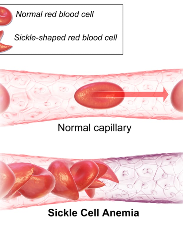sickle-cell-disease-or-anemia-and-crispr-cas9-genome-editing