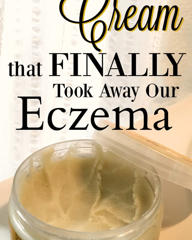 eczema-cream-that-works