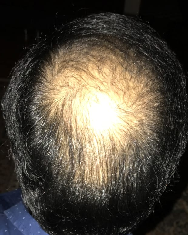 my-daily-experience-post-fue-hair-transplant