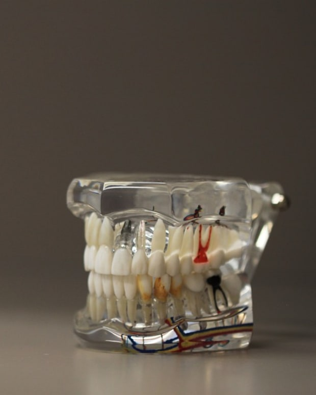10-things-people-with-bad-teeth-want-to-tell-you