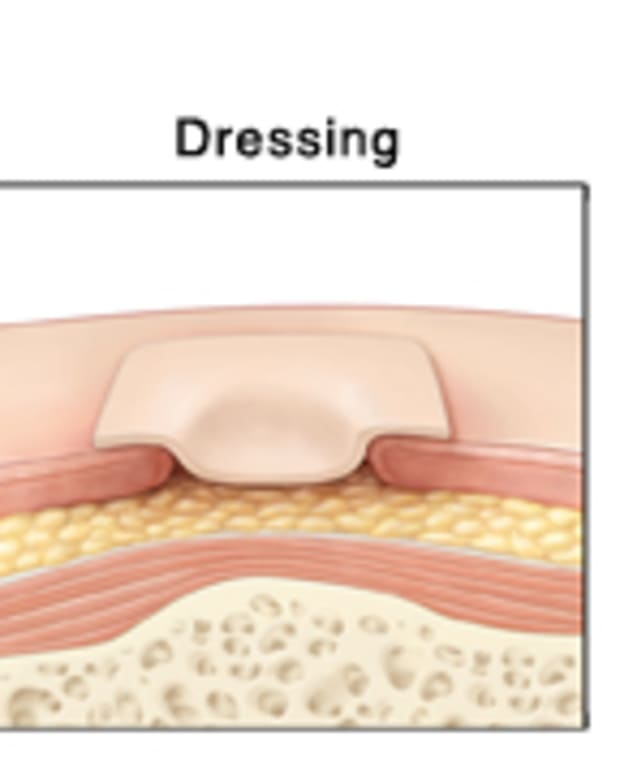 pressure-ulcers-treatment-and-prevention