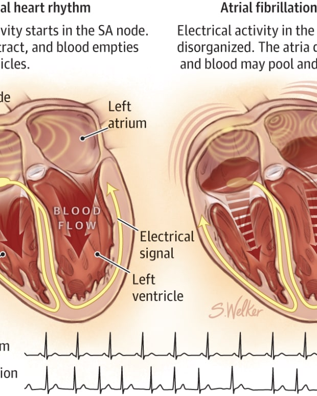 atrial-fibrillation-my-father-is-always-out-of-rhythm