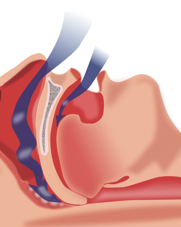 sleep-apnea-its-causes-symptoms-and-diagnosis