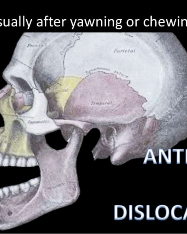 tmj-temporomandibular-joint-disorder-tmj-dislocated-jaw