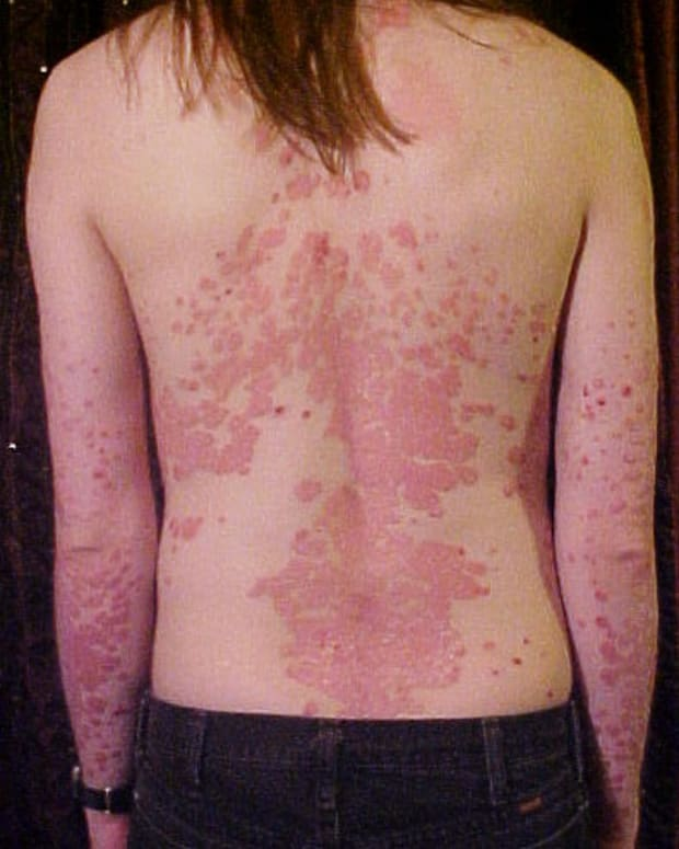effective-home-remedies-for-psoriasis
