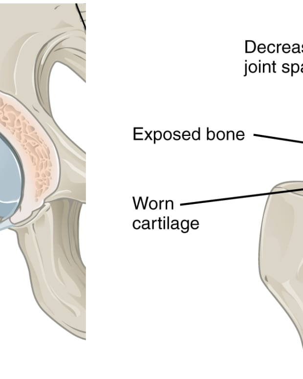 foxo-proteins-joint-damage-and-osteoarthritis