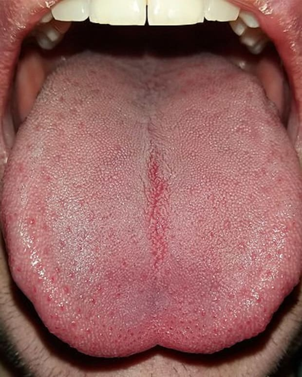 facts-about-the-tongue-you-might-not-know