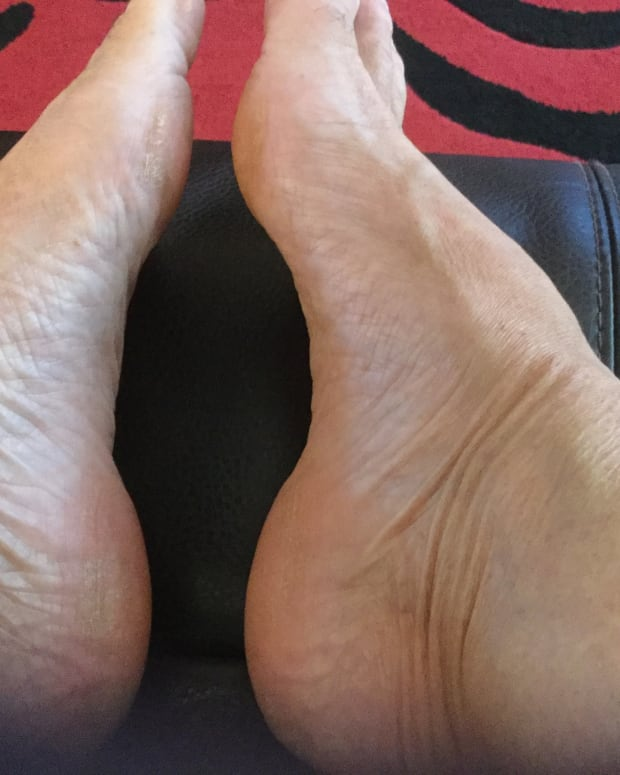 plantar-fasciitis-heel-and-foot-pain