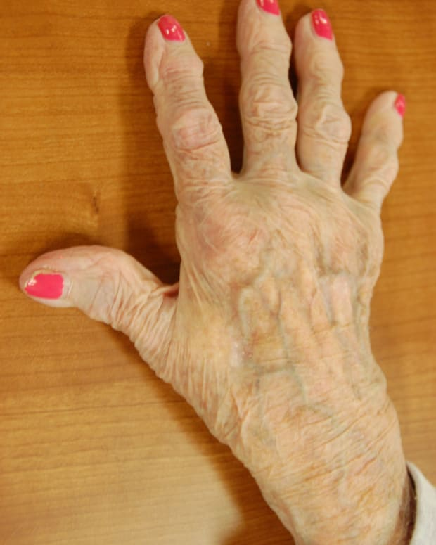 arthritis-relief-heat-treatment-options
