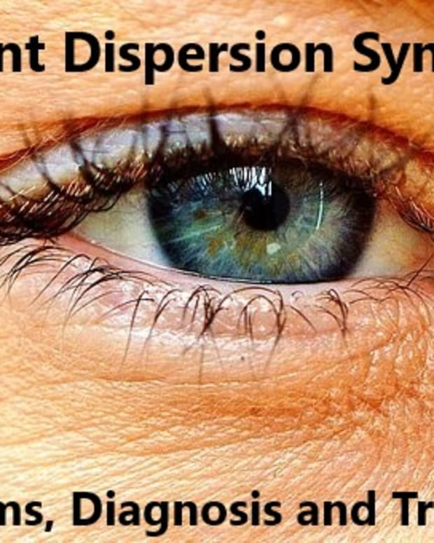 pigment-dispersion-syndrome-my-experience-of-this-eye-condition