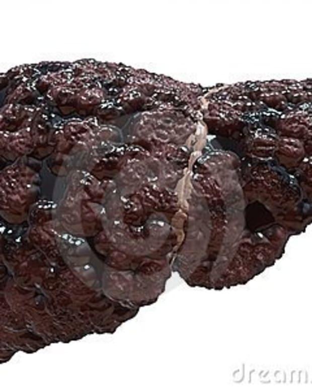 alcholic-liver-disease