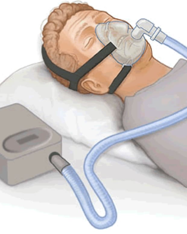 living-with-sleep-apnea