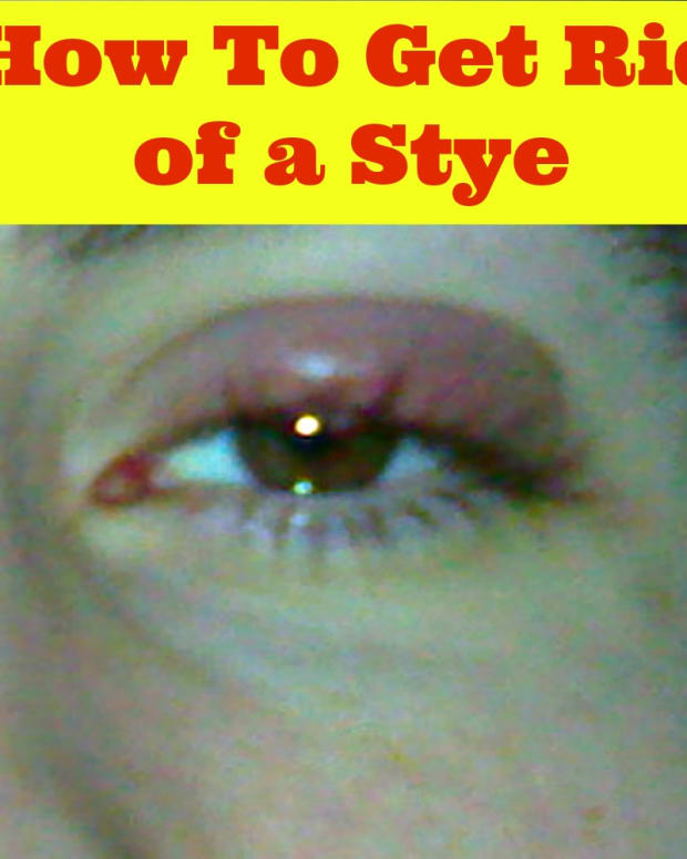 how-to-get-rid-of-a-stye-in-your-eye