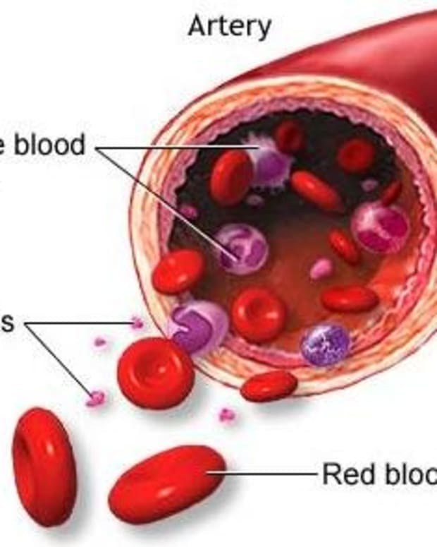 immune-thrombocytopenia-purpura-or-itp
