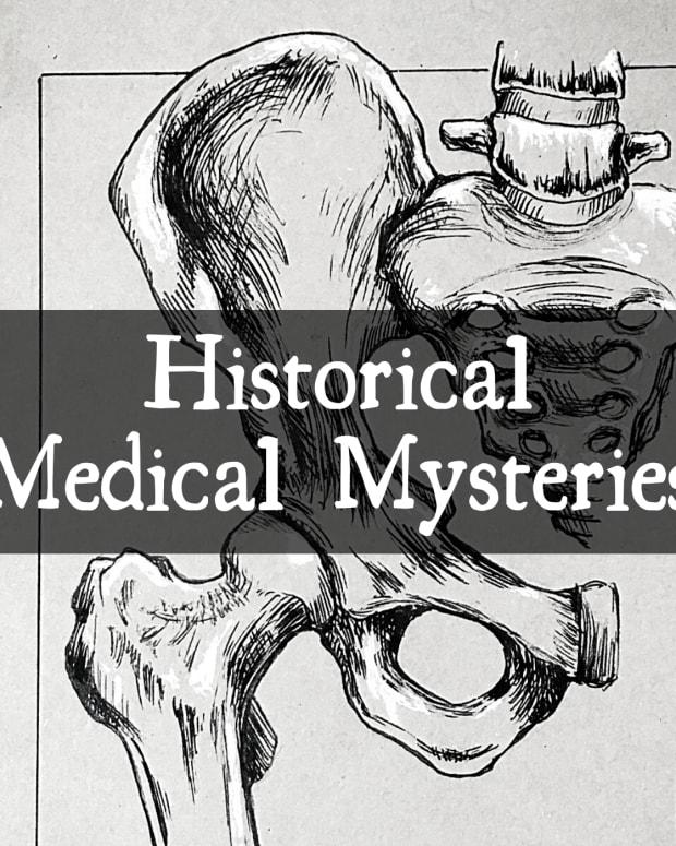 four-weird-medical-mysteries