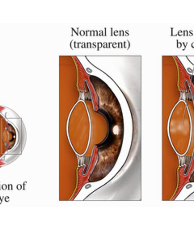 cataract-surgery-what-to-expect-before-during-and-after-the-operation