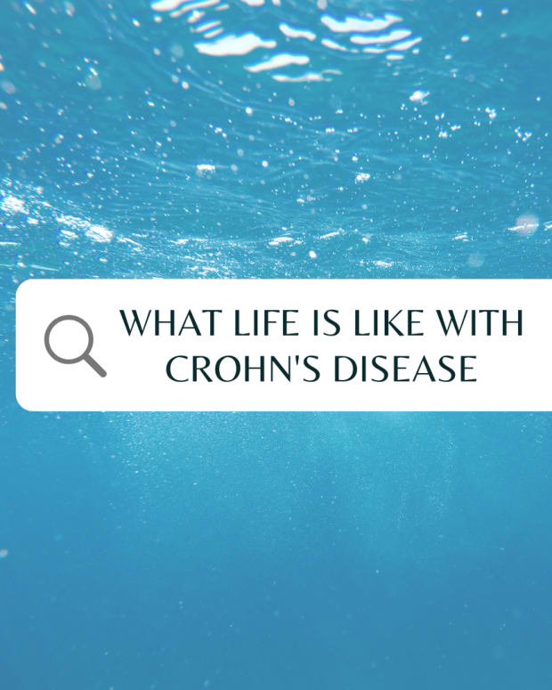 how-to-live-your-lifestyle-as-a-crohns-disease-patient