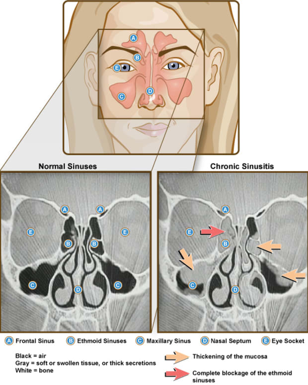 information-about-sinus-problem