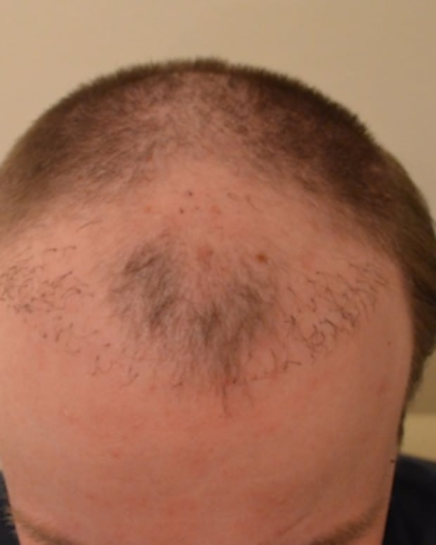 hair-transplants-gone-wrong-negative-experience-of-botched-hairtransplantation