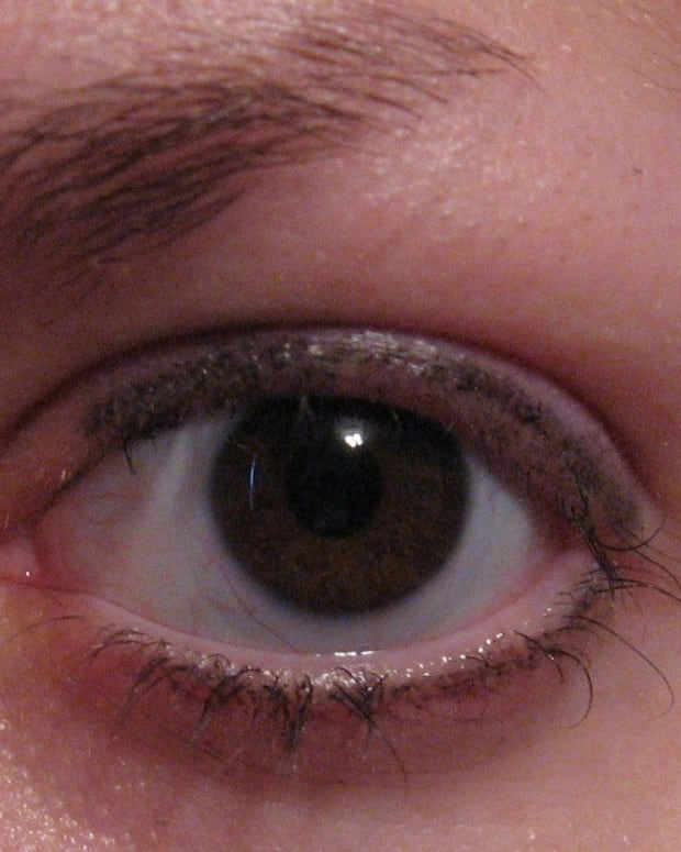 My trichotillomania: pulling out my eyelashes