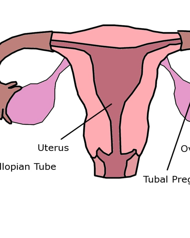tubal-pregnancy-and-ectopic-hcg-levels