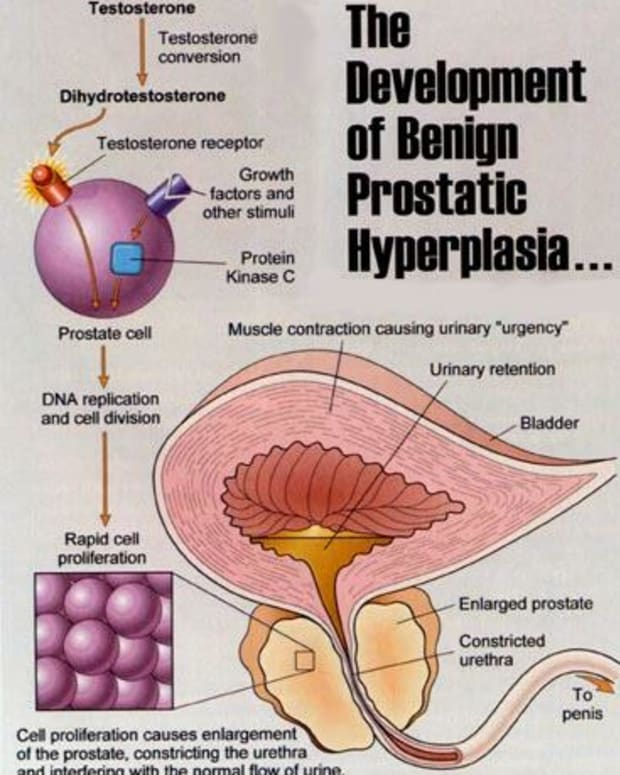 beta-sitosterol-prostate-treatment-bph--prostate-cancer