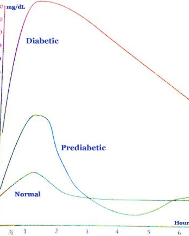 diabetes-blood-sugar-levels-chart-what-is-a-normal-blood-sugar-range