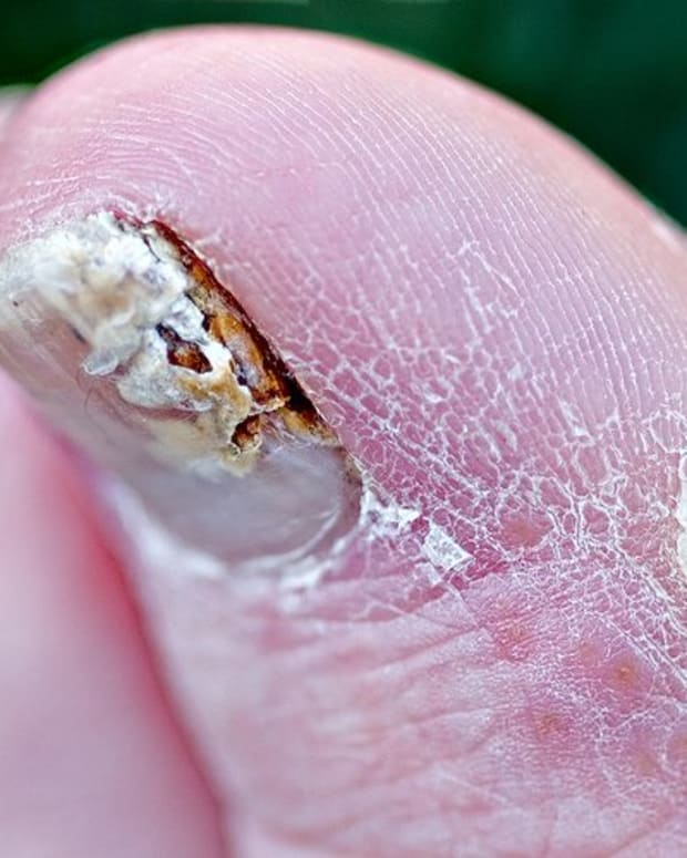 how-to-treat-toenail-fungus-natural-home-remedies