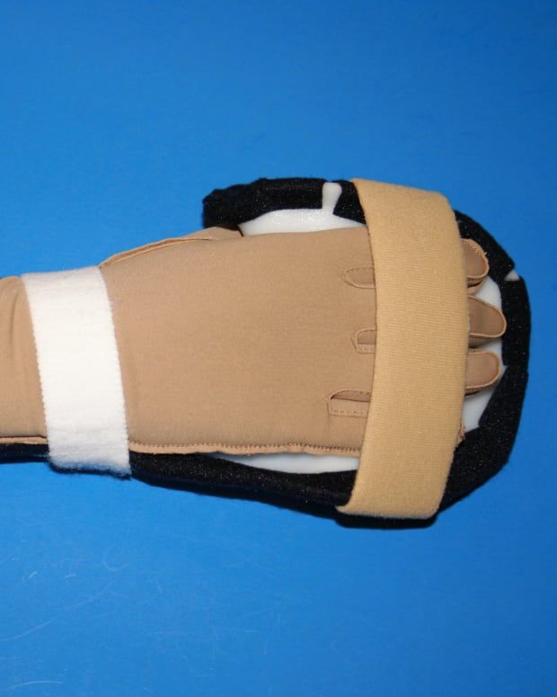 Resting hand splint should cover at least 2/3 of the forearm.  Shown worn with Isotoner glove.